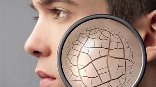 面部皮肤受损怎么修复