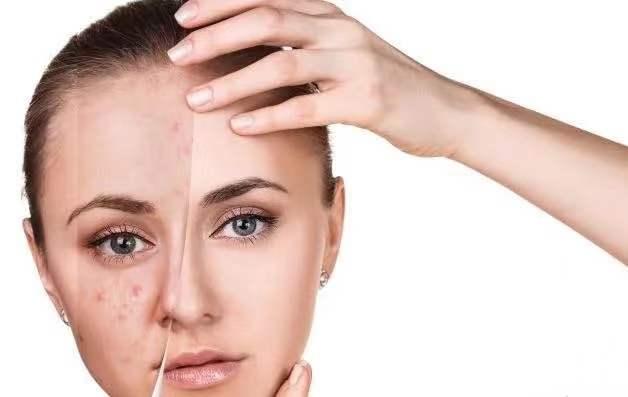 解秘什么是闭口性粉刺 导致长闭口性粉刺的原因是什么?
